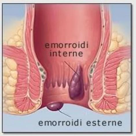 La migliore medicina di emorroidi a uomini
