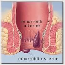 Rimedi di gente di trattamento di emorroidi dopo la consegna