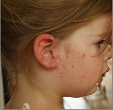 Fattori di rischio di sviluppo di dermatite atopic in bambini