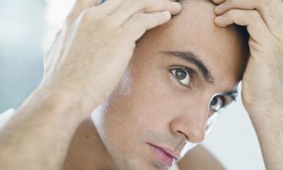 Trapianto di capelli Mosca i prezzi per uomini il prezzo