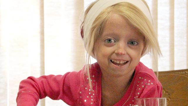 La Progeria &#2... M Night Shyamalan Family