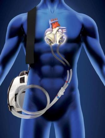 trapianto cuore bionico