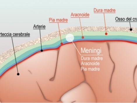 meningite sintomi