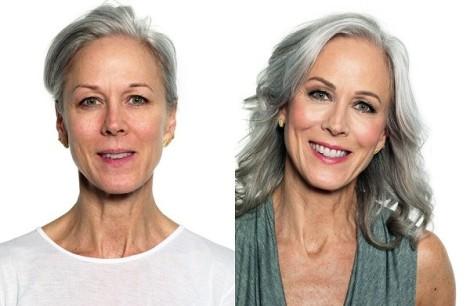 Come-apparire-più-giovane con le cellule staminali
