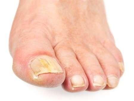 micosi unghie di piedi e mani