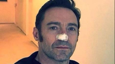 jackman operato di tumore al naso per la sesta volta