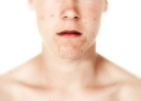 Ragioni di posti sulla faccia e il loro trattamento