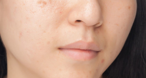 macchie scure sulla pelle