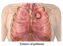 tumore-al-polmone